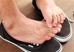 أسباب «رائحة القدم الكريهة».. إليك الحل