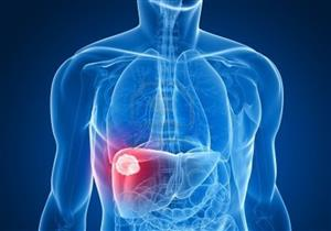 6 أسباب وراء ارتفاع انزيمات الكبد.. إليك الأعراض وطرق الوقاية