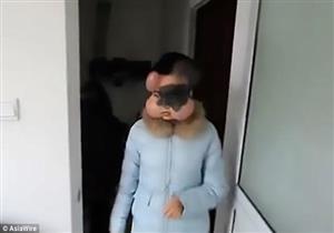 بالصور- أطباء يزرعون 4 كرات في وجه فتاة صينية لإنقاذها من السرطان