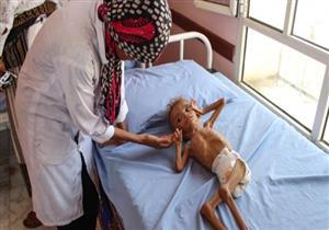 استمرار حرب اليمن يهدد بأسوأ مجاعة منذ 100 عام وموت 13 مليون شخص جوعًا
