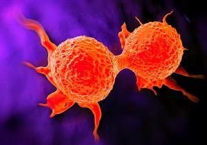مراحل تطور الإصابة بسرطان الثدي.. يبدأ كحبة فول سوداني (فيديو)