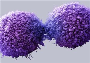 اكتشاف جزئيات في الحمض النووي قادرة على قتل الخلايا السرطانية