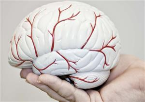 علاج مضمون وسريع للشفاء من استسقاء المخ.. (فيديو)