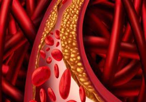 ليست الدهون.. عوامل غذائية لا تتوقعها ترفع نسبة الكوليسترول بالدم