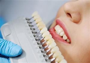 ما الفرق بين الفينير واللومينير في تجميل الأسنان؟