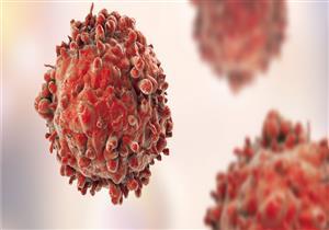تكنولوجيا جديدة تدمر الخلايا السرطانية المنتشرة في الدم.. كيف ذلك؟