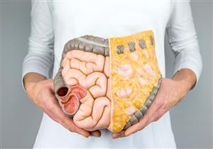مرض كرونز يتشابه مع التهاب القولون التقرحي.. نصائح ضرورية