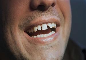 """ما الحل الأمثل لعلاج """"الأسنان المكسورة""""؟.. (فيديو)"""