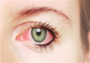 مضاعفاته خطيرة.. إليك كل ما تريد معرفته عن التهاب ملتحمة العين