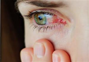 تصل لفقدان البصر.. أمراض تهدد عينك بعد الأربعين