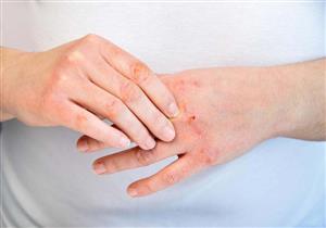 بشرى سارة لمرضى الصدفية.. عقار جديد يقضي على ٩٠% من الأعراض