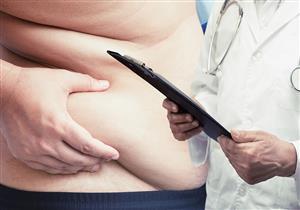 خسارة الوزن ضرورية لمرضى فيروس سي.. متى نلجأ للجراحة؟
