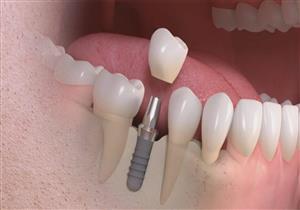 ماذا يحدث عند عدم تعويض الأسنان المفقودة؟.. احذر هذه الأضرار