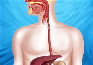 علاج دوالي المريء في ساعة واحدة دون جراحة