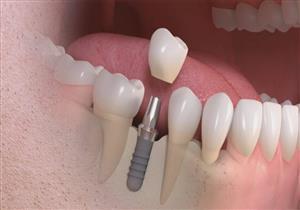 تقنية جديدة لزراعة الأسنان خلال دقائق