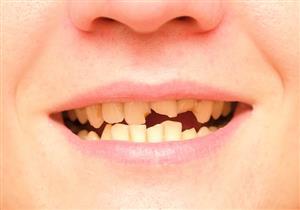 كبار السن مهددون به.. إليك أسباب تكسر الأسنان وطرق العلاج