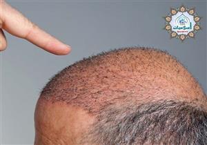 شروط من دار الإفتاء لزراعة الشعر