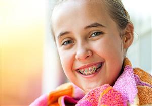 متى يمكن تقويم أسنان الأطفال؟