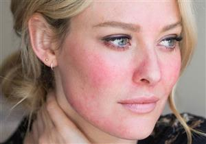 للحساسية نصيب الأسد منها.. 8 أسباب وراء تورم الوجه بشكل مفاجئ