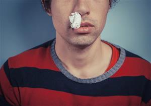 هذه العادات خاطئة.. تعرف على الإسعافات الأولية لنزيف الأنف