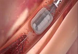 تقنية حديثة لعلاج ضيق أسفل المريء وأورام الجهاز الهضمي