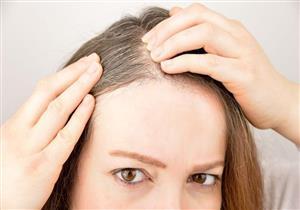 حيل بسيطة لإخفاء شعرك الأبيض دون الحاجة للصبغة