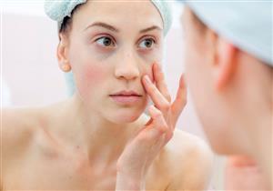5 طرق طبيعية للتخلص من الدهون حول العين