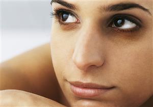 عيون الراكون.. هل يمكن علاجها؟