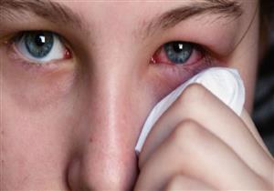 إهمال علاج الرمد الصديدي يسبب العمى.. إليك أعراضه