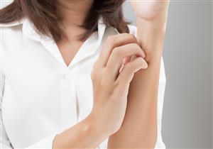 الإكزيما التلامسية تسبب تشقق الجلد .. هكذا تتخلص منها