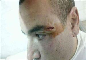 بالصور- اتهام أمين شرطة بالاعتداء على طبيب وتحطيم أجهزة وحدة صحية بالمنوفية