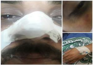 """أقارب مريضة يضربون طبيبًا بدمياط: """"قطع شريان رحمها"""""""