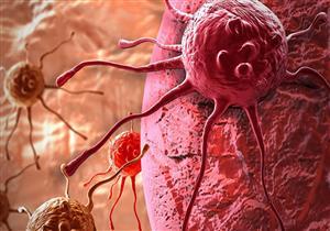 علماء يكتشفون بذور معدنية تقتل الأورام في دقائق