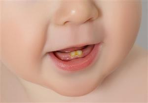 أسنان الرضيع عُرضة للتسوس.. كيف تحميها؟