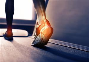 أعراض تشير إلى التهاب وتر أكيلس.. ماذا تفعل؟