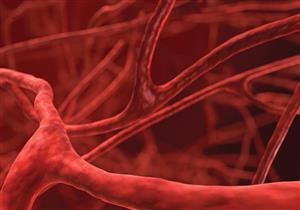 أسباب ضيق الأوعية الدموية وطرق التعامل معه