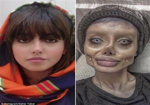 بالصور- حقيقة صادمة تكشفها الإيرانية التي أجرت عمليات تجميل لتشبه أنجلينا جولي