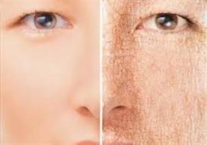 هل يؤثر جفاف الجسم على الإدراك؟ .. دراسة تجيب