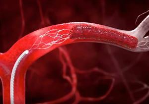 الشجار بين الزوجين يزيد من نسبة البكتيريا في الدم
