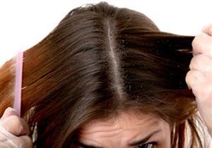 وصفة منزلية بهذا النوع من التوابل للتخلص من قشرة الشعر