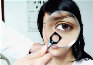 ماذا تعرف عن التهاب الملتحمة التحسسي؟