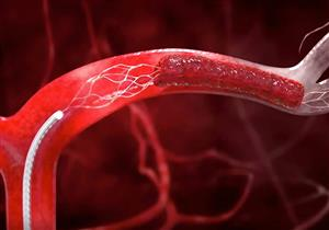 تمدد الأوعية الدموية قد يؤدي للوفاة.. تجنب عوامل الخطورة