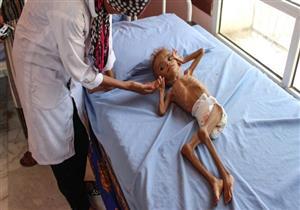 """الإندبندنت: مخزون الطعام في اليمن """"قد ينفد خلال شهرين"""""""