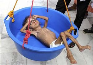أهم عناوين الصحف العالمية: مخزون الطعام في اليمن يقترب من الانتهاء