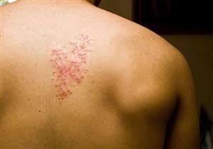 """""""الحزام الناري"""" خطر يهدد جلدك.. نصائح للسيطرة عليه"""