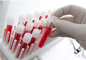اختبار جديد للكشف المبكر عن سرطان البنكرياس