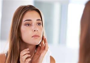 5 نصائح بسيطة تحميك من ظهور حبوب الوجه