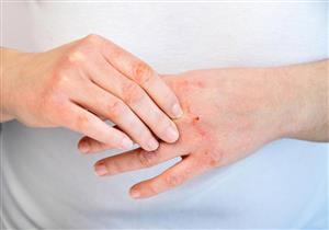 الصدفية.. أسباب وأعراض وعلاجات متنوعة