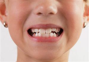 ضب الأسنان في الأطفال.. عادات خاطئة ومشكلات صحية