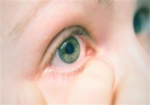أدخنة السجائر تسببه.. التهاب الملتحمة مرض يهدد عين طفلكِ